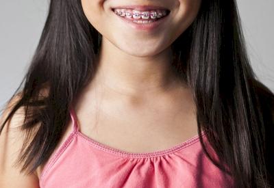 Perlukah Anak-anak Menggunakan Kawat Gigi?