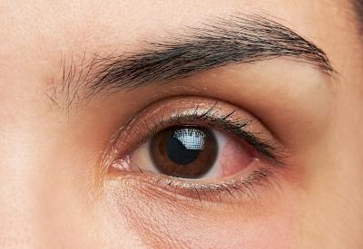 Kenali dan Atasi Alergi pada Mata