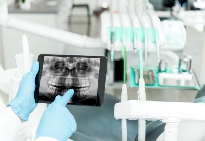 Implan Gigi Lebih Nyaman dengan Cone Beam Computed Tomography (CBCT)