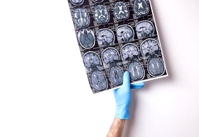 Intervensi Stroke dengan Terapi Endovaskular Invasif Minimal