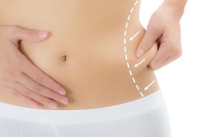 Ramping dan Sehat dengan Liposuction