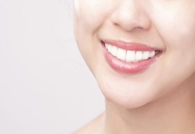 Veneering - Hadiah bagi Gigi Indah dan Sehat