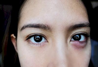 Mengenal Bintitan, Si Kecil Pengganggu Kesehatan Mata